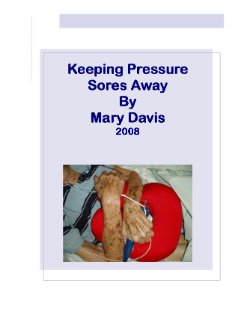 Keeping Pressure Sores Away